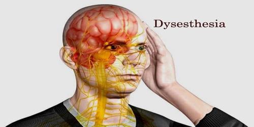 Dysesthesia