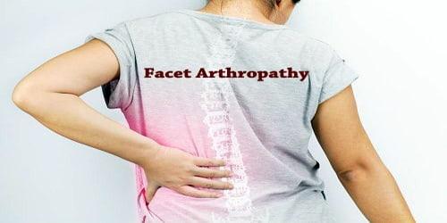 Facet Arthropathy