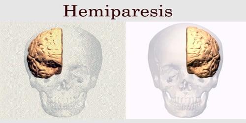 Hemiparesis