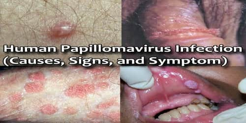 Human Papillomavirus Infection (Causes, Signs, and Symptom)