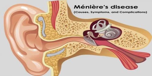 Ménière's disease (Causes, Symptoms, and Complications)