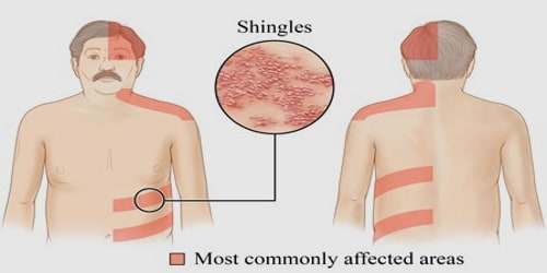 Shingles Causes Symptoms And Complications