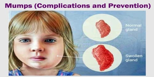 Mumps (Complications and Prevention)