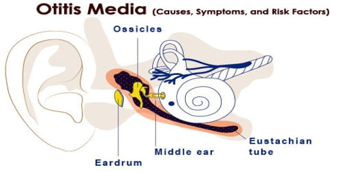 Otitis Media (Causes, Symptoms, and Risk Factors)