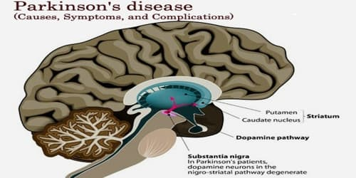 Parkinson's disease (Causes, Symptoms, and Complications)