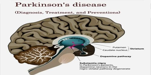 Parkinson's disease (Diagnosis, Treatment, and Preventions)