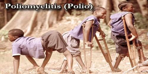 Poliomyelitis (Types, Causes and Symptom)