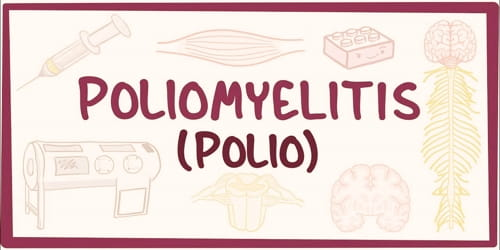 Poliomyelitis (Vaccine, Diagnosis, Treatment and Prevention)