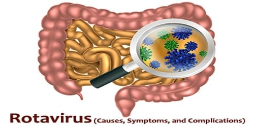 Rotavirus (Causes, Symptoms, and Complications)