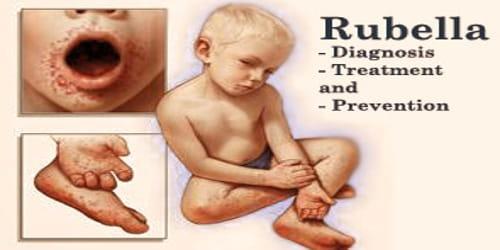 Rubella (Diagnosis, Treatment, and Prevention)