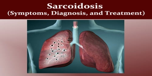 Sarcoidosis (Symptoms, Diagnosis, and Treatment)