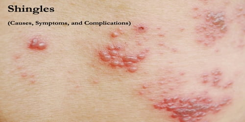 Shingles (Causes, Symptoms, and Complications)