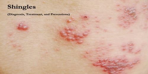 Shingles (Diagnosis, Treatment, and Preventions)