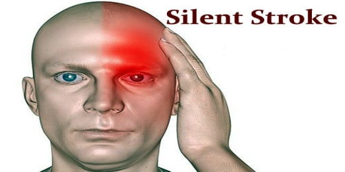 Silent Stroke