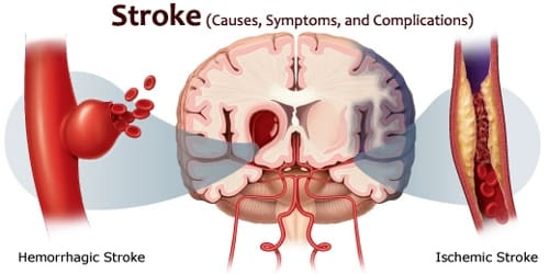 Stroke (Causes, Symptoms, and Complications)
