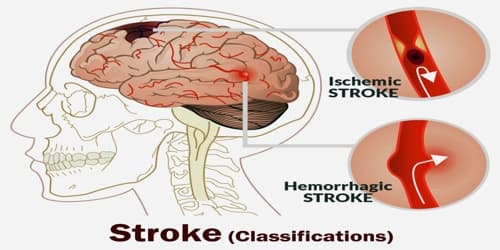 Stroke (Classifications)