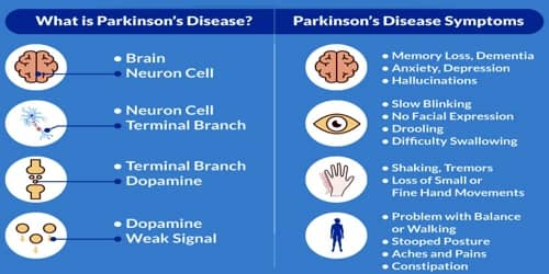 Parkinson's disease (Causes, Symptoms, and Complications