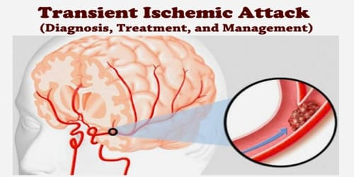 Transient Ischemic Attack (Diagnosis, Treatment, and Management)
