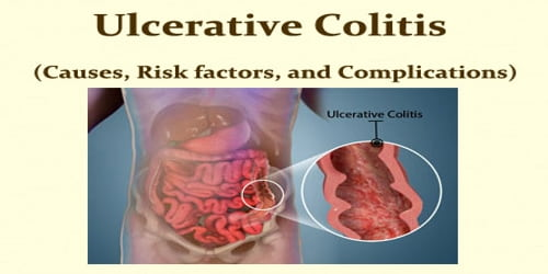Ulcerative Colitis (Causes, Risk factors, and Complications)
