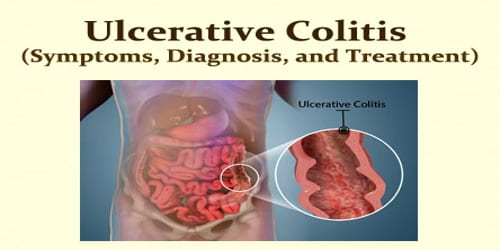 what is ulcerative colitis symptoms