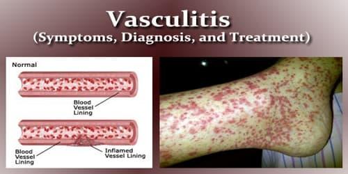 Vasculitis (Symptoms, Diagnosis, and Treatment)