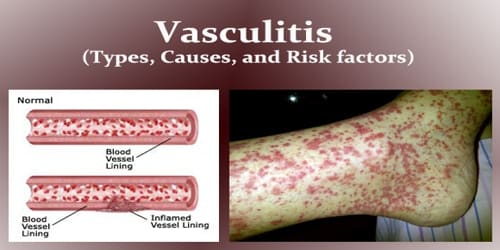 Vasculitis (Types, Causes, and Risk factors)