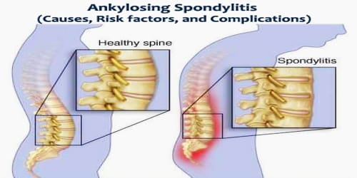 Ankylosing Spondylitis (Causes, Risk factors, and Complications)