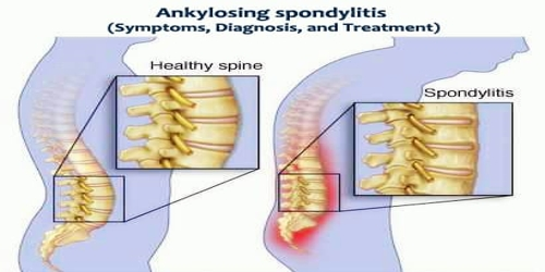 Ankylosing spondylitis (Symptoms, Diagnosis, and Treatment)