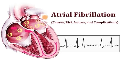 Atrial Fibrillation (Causes, Risk factors, and Complications)