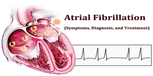 Atrial Fibrillation (Symptoms, Diagnosis, and Treatment)