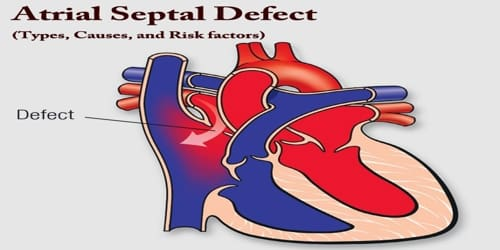 Atrial Septal Defect (Types, Causes, and Risk factors)