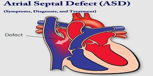 Atrial septal defect (Symptoms, Diagnosis, and Treatment)