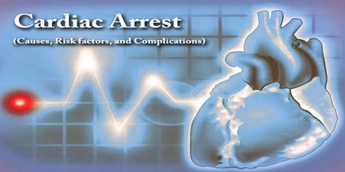 Cardiac Arrest (Causes, Risk factors, and Complications)