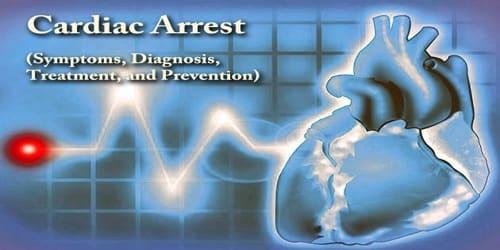 Cardiac Arrest (Symptoms, Diagnosis, Treatment, and Prevention)