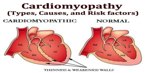 Cardiomyopathy (Types, Causes, and Risk factors)