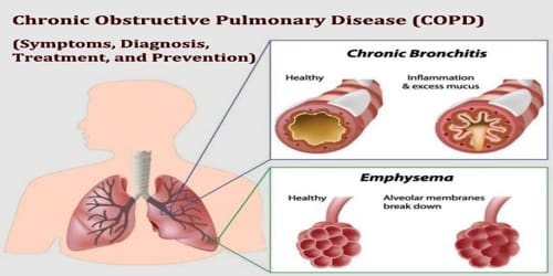 Chronic Obstructive Pulmonary Disease (Symptoms, Diagnosis, Treatment, and Prevention)