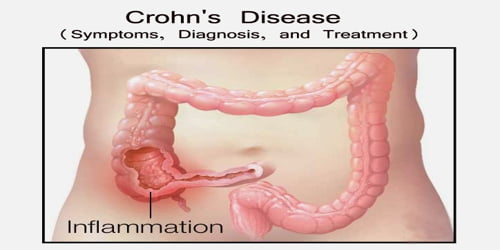 Crohn's Disease (Symptoms, Diagnosis, and Treatment)