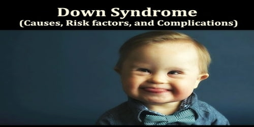Down Syndrome (Causes, Risk factors, and Complications)