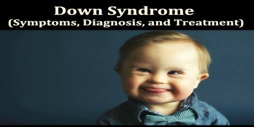 Down Syndrome (Symptoms, Diagnosis, and Treatment)