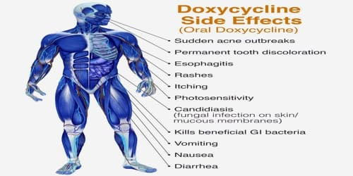 Doxy side effects