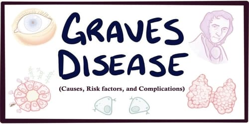 Graves' Disease (Causes, Risk factors, and Complications)