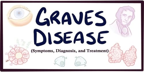 Graves' disease (Symptoms, Diagnosis, and Treatment)