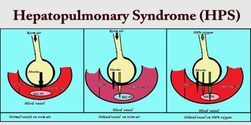 Hepatopulmonary Syndrome (HPS)