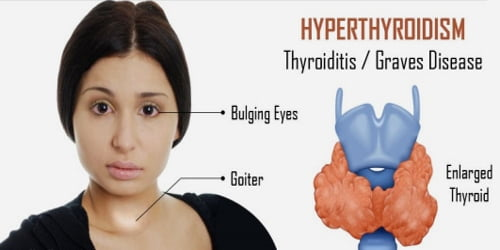 Hyperthyroidism (Symptoms, Diagnosis, and treatment)