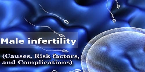 Male Infertility (Causes, Risk factors, and Complications)