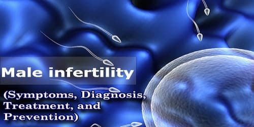 Male Infertility (Symptoms, Diagnosis, Treatment, and Prevention)