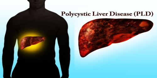 Polycystic Liver Disease (PLD)
