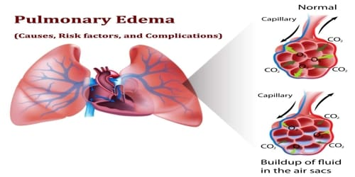 Pulmonary Edema (Causes, Risk factors, and Complications)