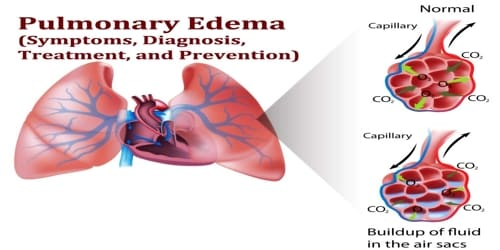Pulmonary Edema (Symptoms, Diagnosis, Treatment, and Prevention)