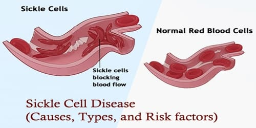 Sickle Cell Disease (Causes, Types, and Risk factors)